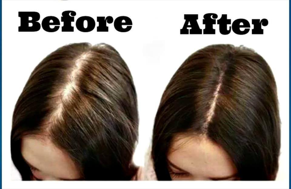 How To Regrow Hair Best Amp Natural Ways To Regrow Hair